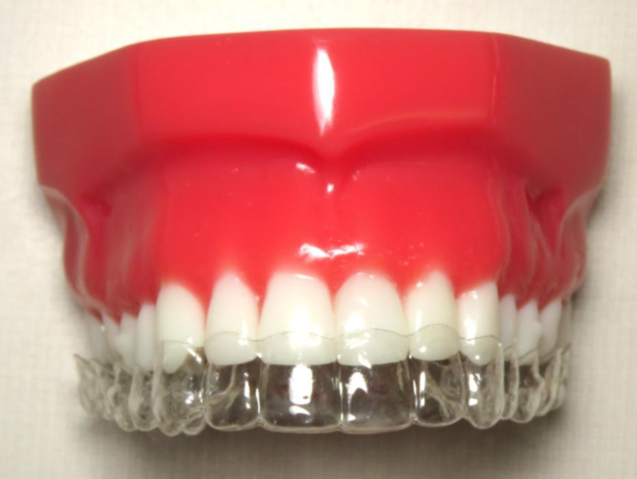 Tooth Mould with Invisalign | Oakwood Dental
