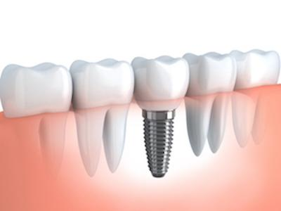 Dental implants in Castle rock co