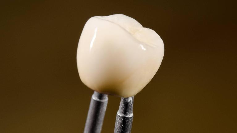Close up of dental crown | Dentist Castle Rock CO