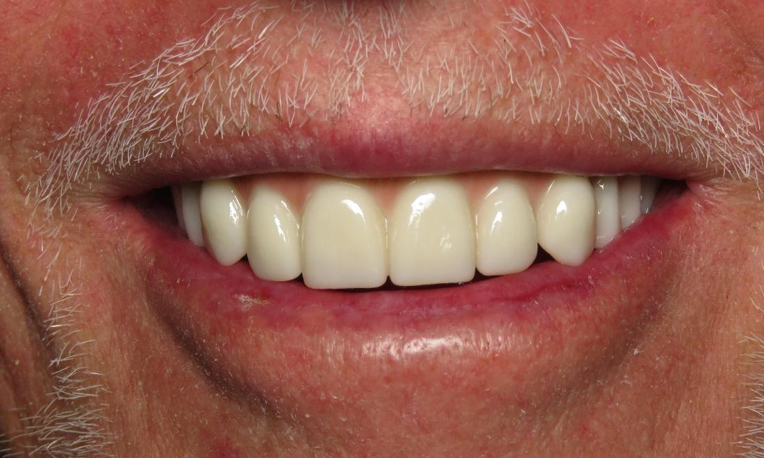 New smile with implant-supported dentures
