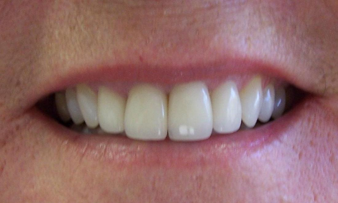 Porcelain crowns for straighter teeth | Castle Rock CO Dentist