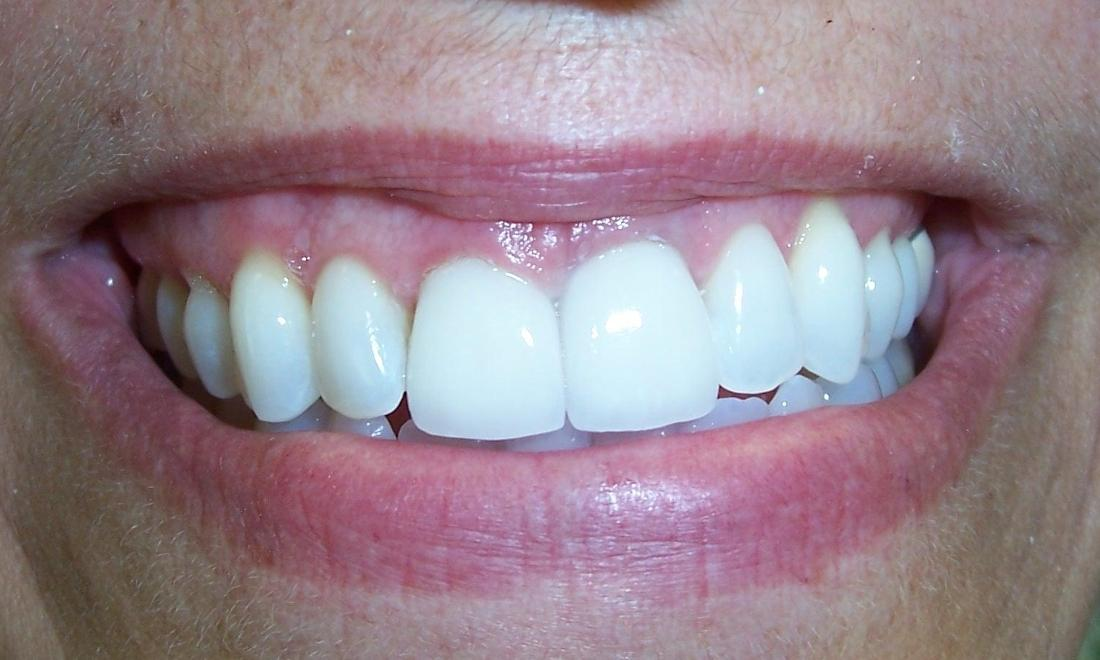 Whitened central incisors | Dentist Castle Rock CO