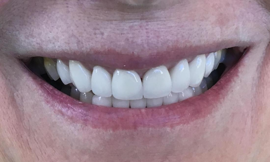 Porcelain crowns to transform front teeth | Castle Rock CO Dentist