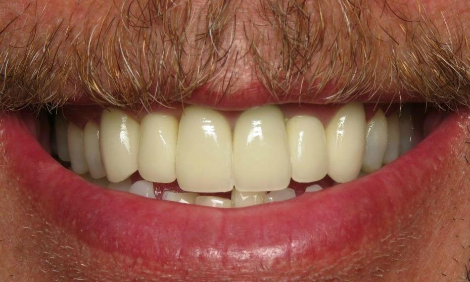 Dental crowns used to transform smile