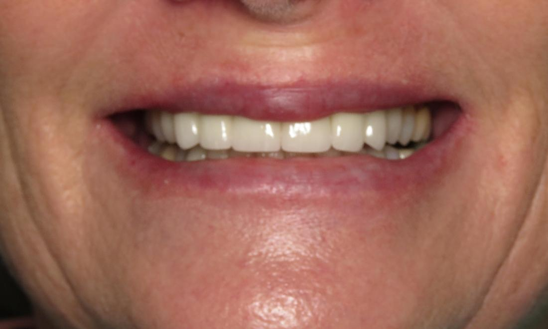 New porcelain crowns for worn teeth