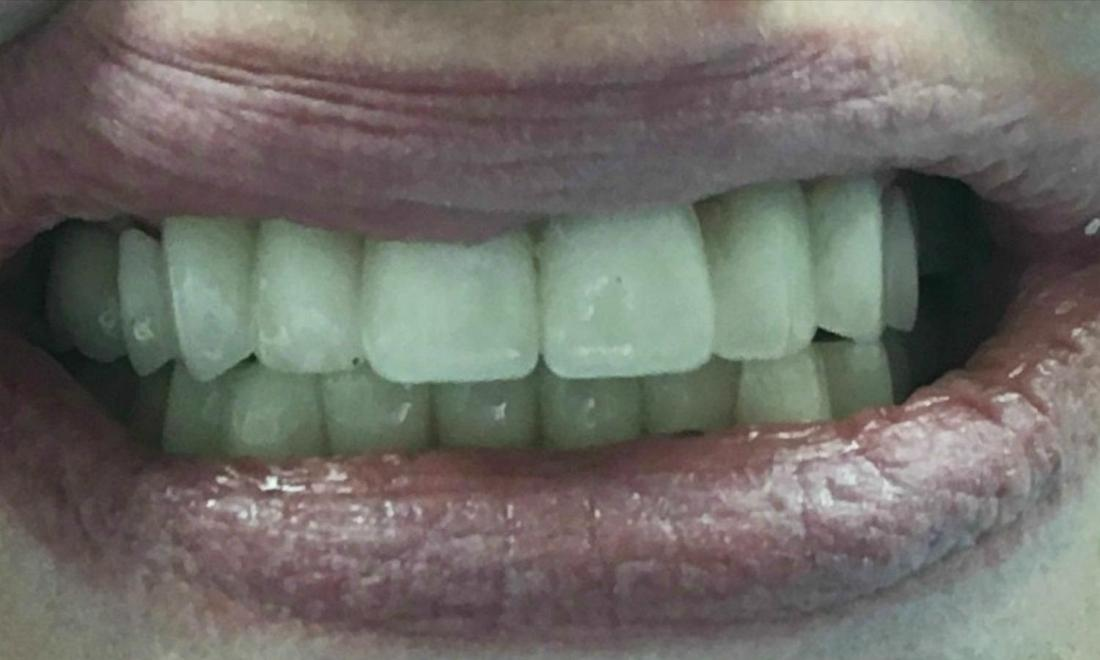 Close up of new smile with porcelain crowns