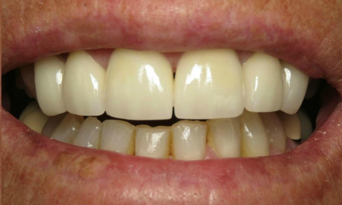 new porcelain crowns for a less gummy smile