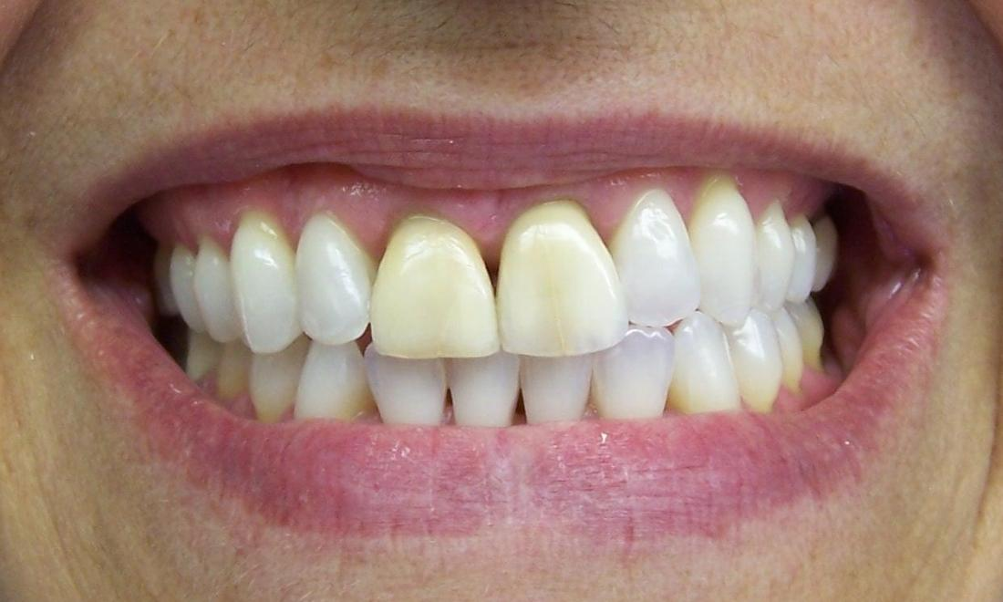 Discolored central incisors | Cosmetic Dentistry Castle Rock CO