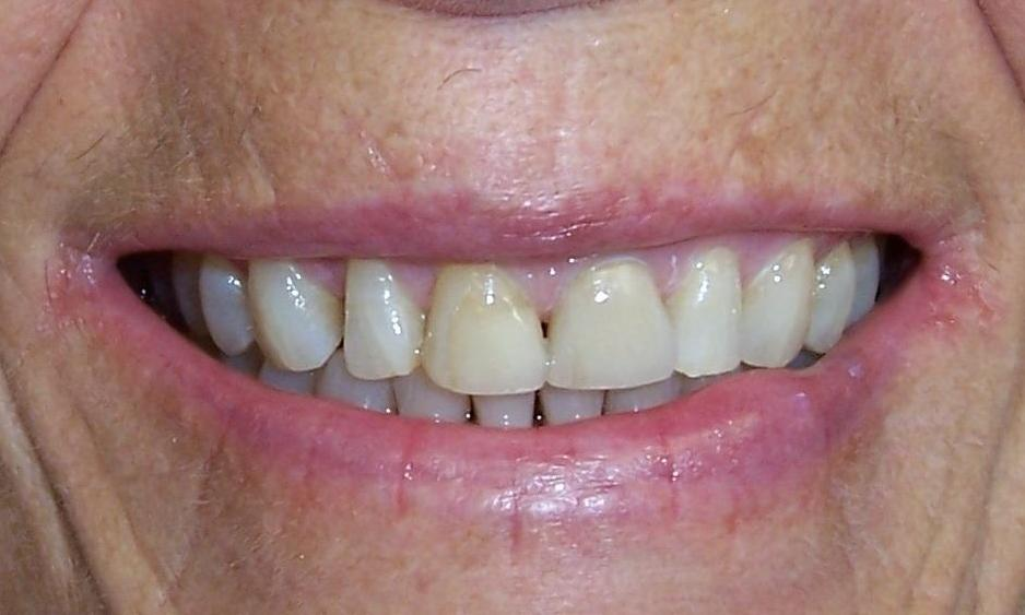 Discolored front teeth | Dentist Castle Rock CO