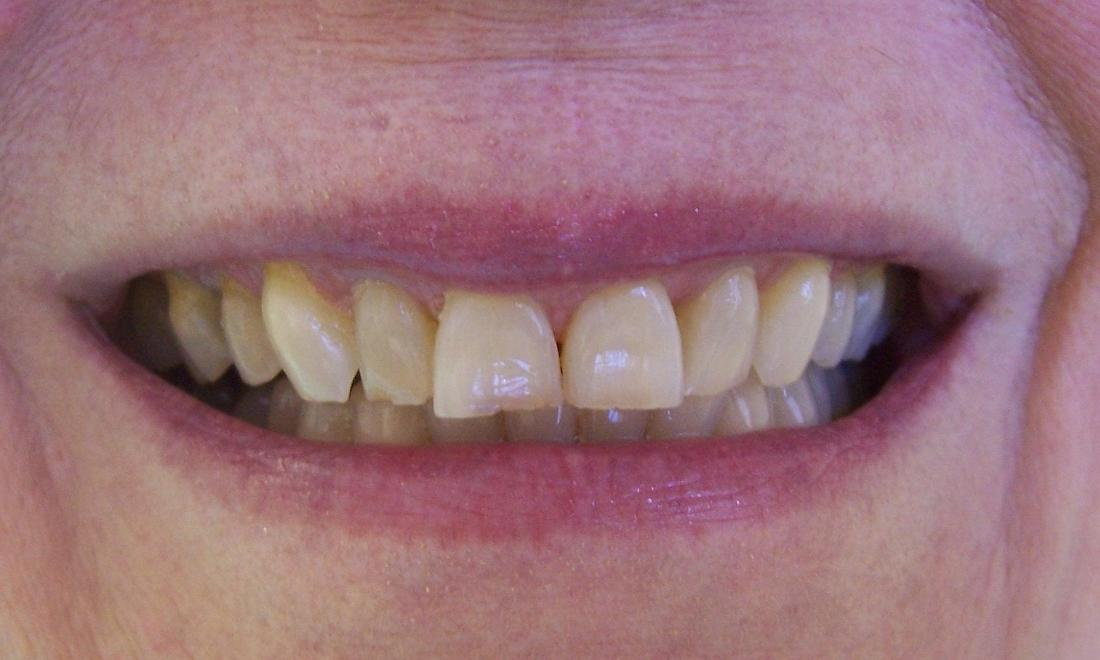 Worn front teeth | Oakwood Dental