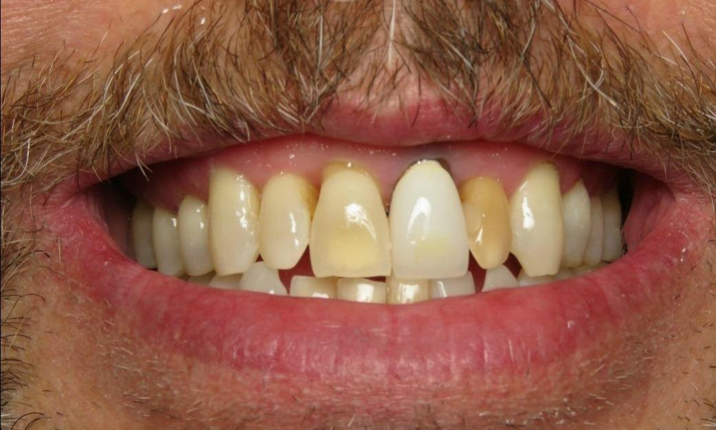 discolored upper teeth