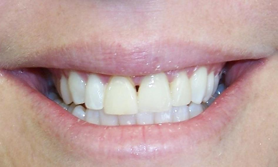 Black triable between front teeth | Castle Rock CO Dentist