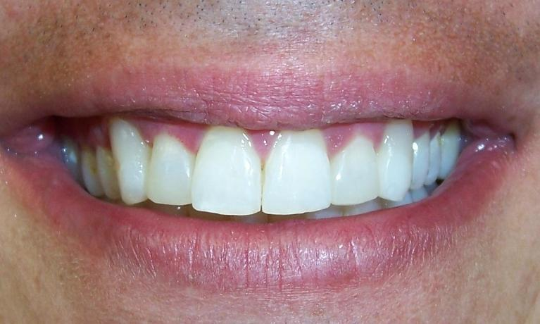 Short-Term-Orthodontics-After-Image