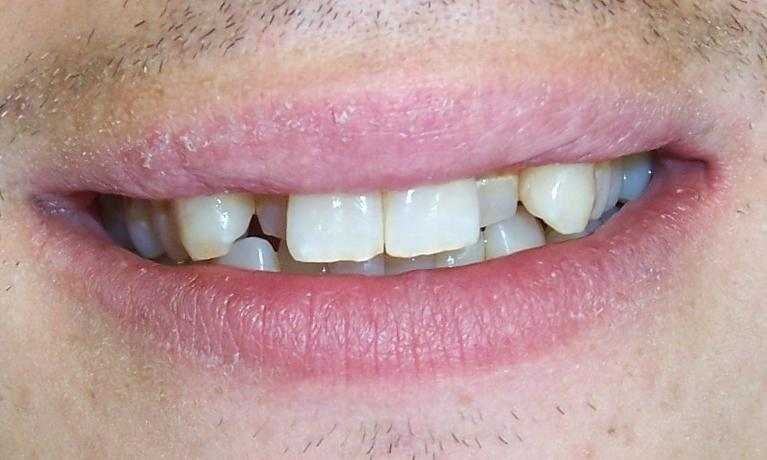Short-Term-Orthodontics-Before-Image